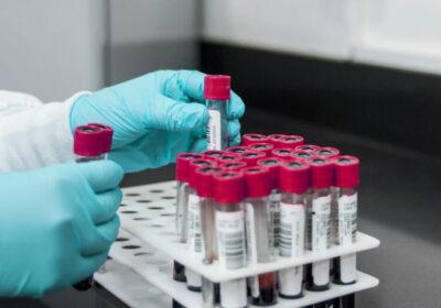 Европол предупреди: Съществува реална опасност от измами с ваксината срещу К-вид