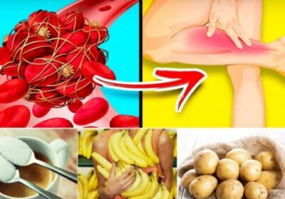10 коварни продукта, които опасно сгъстяват кръвта и предизвикват тромби – ядем ги ежедневно